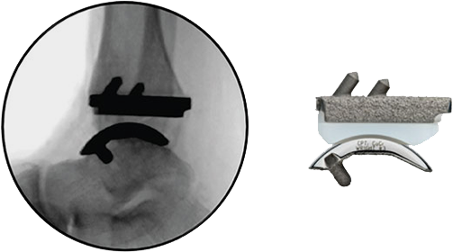 INFINITY™ Total Ankle System - Total Ankle Replacement